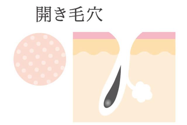 開き毛穴の図